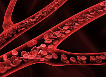 What is von Willebrand disease